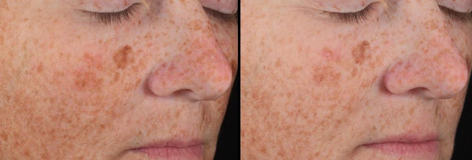 Skin-Brightening-Complex-Female